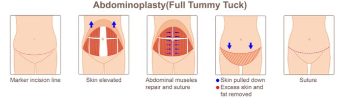 Abdominoplasty Full Tummy Tuck