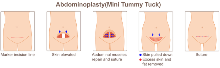 The Mini Tummy Tuck Procedure