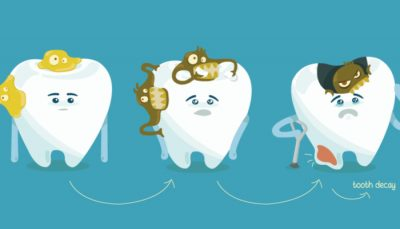 Cavities Tooth Decay