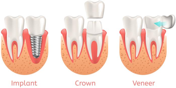 Dental Health and Veneer: implant, crown, veneer