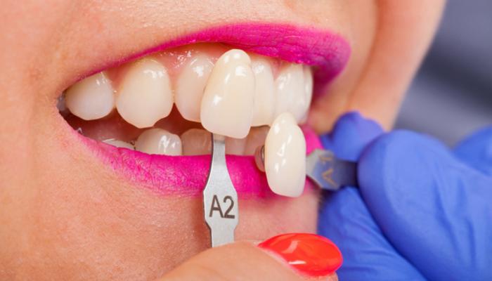 Dental Health and Veneer