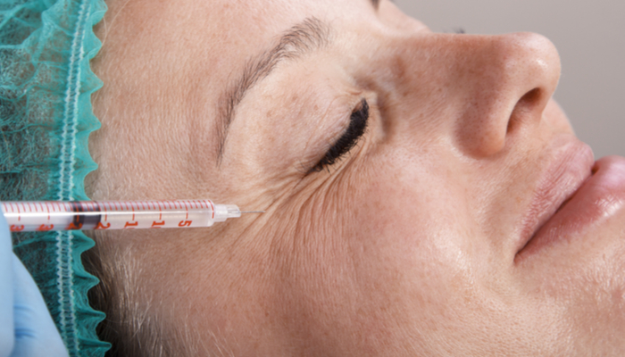 Eye Lift Anesthesia