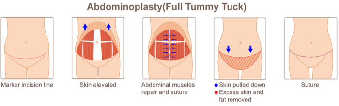 Full Tummy Tuck Procedure