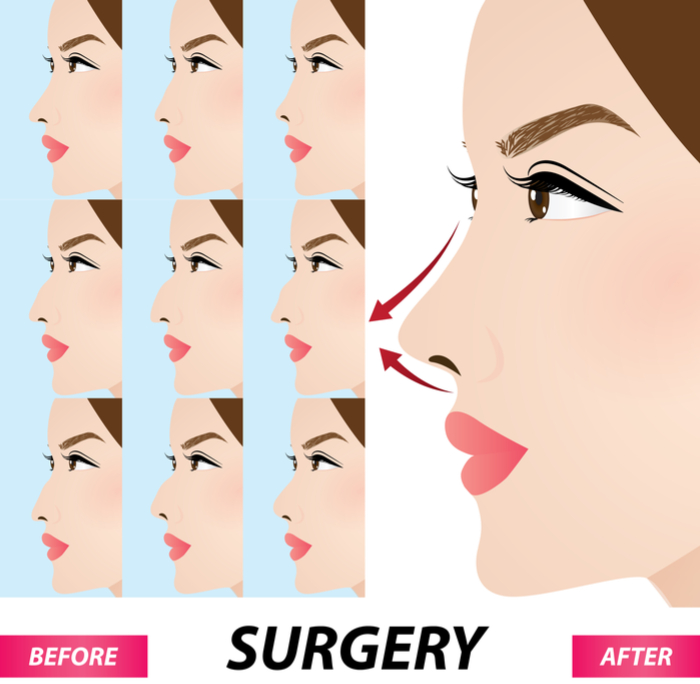 Rhinoplasty Procedures Closed Open The Filler Revision Vavahealth