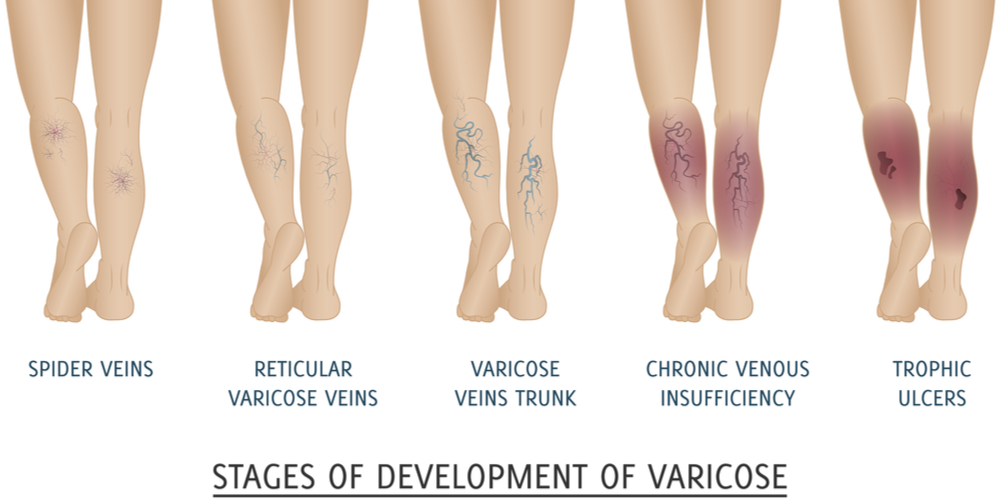 Varicose Veins Stages